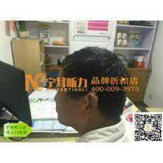 上海斯达克助听器尊享红玫2000哪最优惠