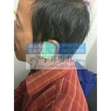 上海崇明瑞声达助听器验配中心助听器调试