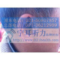 上海虹口奥迪康助听器折扣店