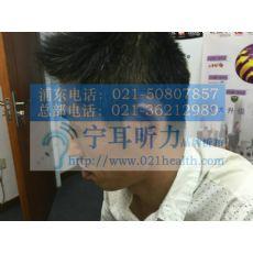 上海闸北美国斯达克助听器折扣店