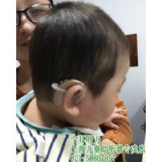 宁耳听力上海儿童助听器专卖店