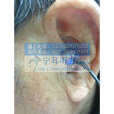 上海闵行丽声助听器折扣店
