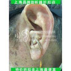 上海闵行西门子助听器专卖店