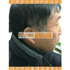 上海闸北德国助听器