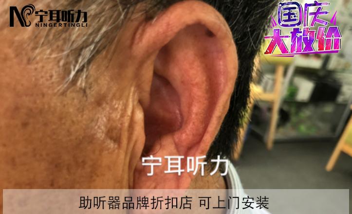 徐汇西门子助听器实体店/宁耳国庆节折上折