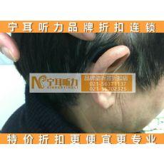 浦西上海儿童助听器专卖店