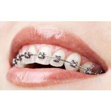 张店牙齿矫正价格|优质的矫正牙齿推荐
