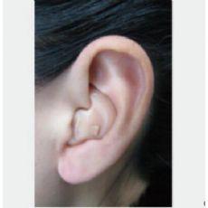 知名的老人助听器供应商_杰闻医疗-崭新的助听器