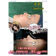 上海鼻综合整形哪家好_线雕隆鼻怎么做